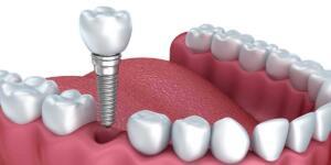 טכנאי שיניים