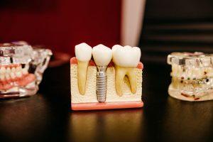 5 טיפים לפני שעוברים השתלת שיניים